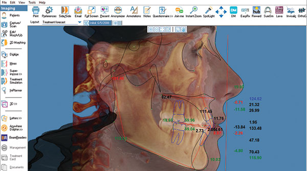Dolphin 3D software makes it easy to orient, rotate, adjust and analyze 3D images of craniofacial anatomy.